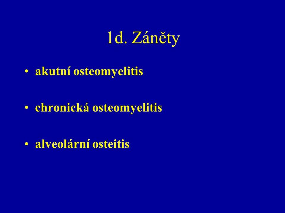 1d. Záněty akutní osteomyelitis chronická osteomyelitis alveolární osteitis