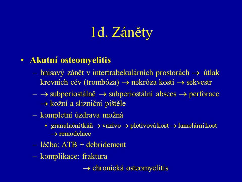 1d. Záněty Akutní osteomyelitis –hnisavý zánět v intertrabekulárních prostorách  útlak krevních cév (trombóza)  nekróza kosti  sekvestr –  subperi