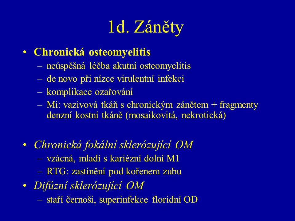 1d. Záněty Chronická osteomyelitis –neúspěšná léčba akutní osteomyelitis –de novo při nízce virulentní infekci –komplikace ozařování –Mi: vazivová tká