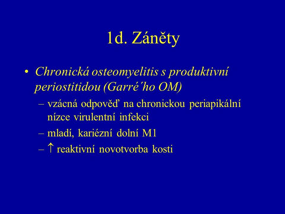 1d. Záněty Chronická osteomyelitis s produktivní periostitidou (Garré´ho OM) –vzácná odpověď na chronickou periapikální nízce virulentní infekci –mlad