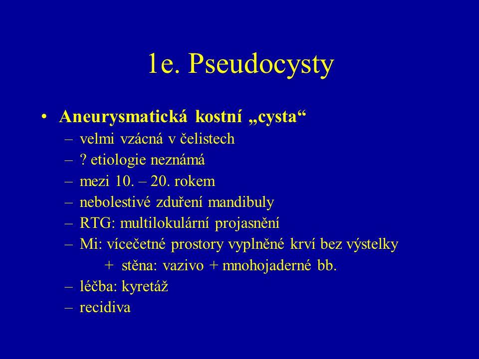 """1e. Pseudocysty Aneurysmatická kostní """"cysta"""" –velmi vzácná v čelistech –? etiologie neznámá –mezi 10. – 20. rokem –nebolestivé zduření mandibuly –RTG"""