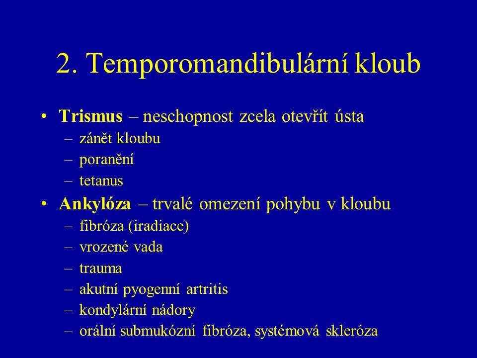 2. Temporomandibulární kloub Trismus – neschopnost zcela otevřít ústa –zánět kloubu –poranění –tetanus Ankylóza – trvalé omezení pohybu v kloubu –fibr