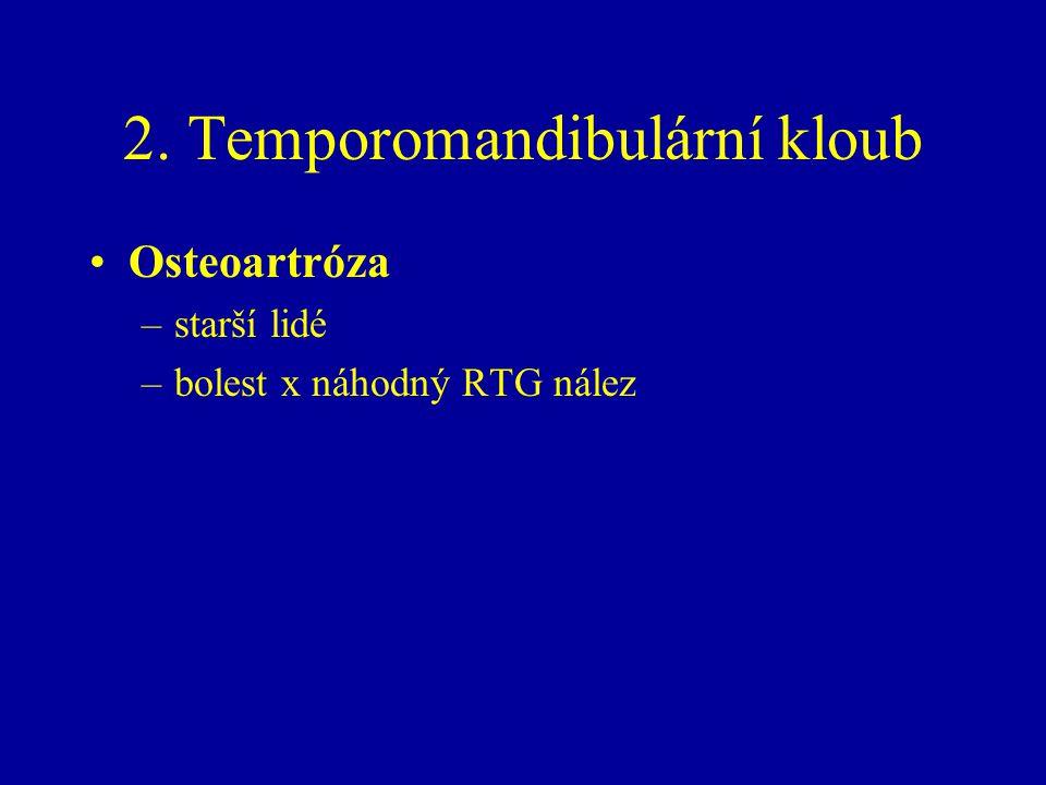 2. Temporomandibulární kloub Osteoartróza –starší lidé –bolest x náhodný RTG nález
