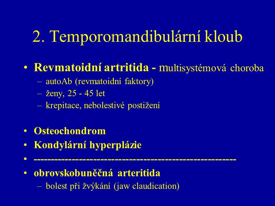 2. Temporomandibulární kloub Revmatoidní artritida - m ultisystémová choroba –autoAb (revmatoidní faktory) –ženy, 25 - 45 let –krepitace, nebolestivé