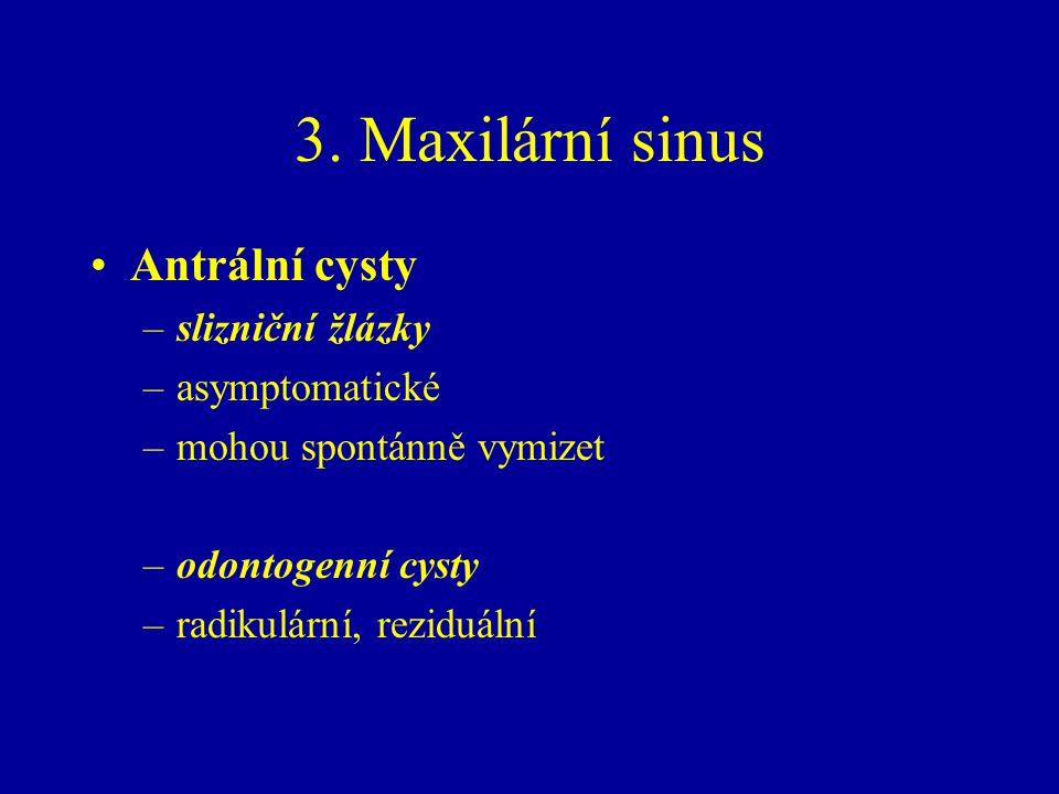 3. Maxilární sinus Antrální cysty –slizniční žlázky –asymptomatické –mohou spontánně vymizet –odontogenní cysty –radikulární, reziduální