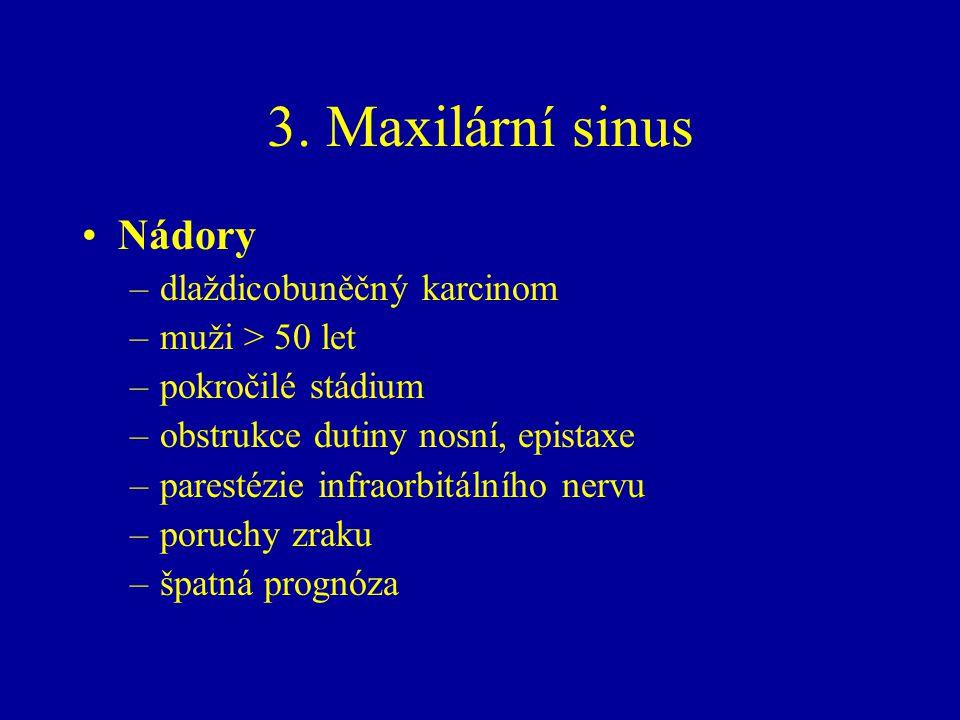 3. Maxilární sinus Nádory –dlaždicobuněčný karcinom –muži > 50 let –pokročilé stádium –obstrukce dutiny nosní, epistaxe –parestézie infraorbitálního n