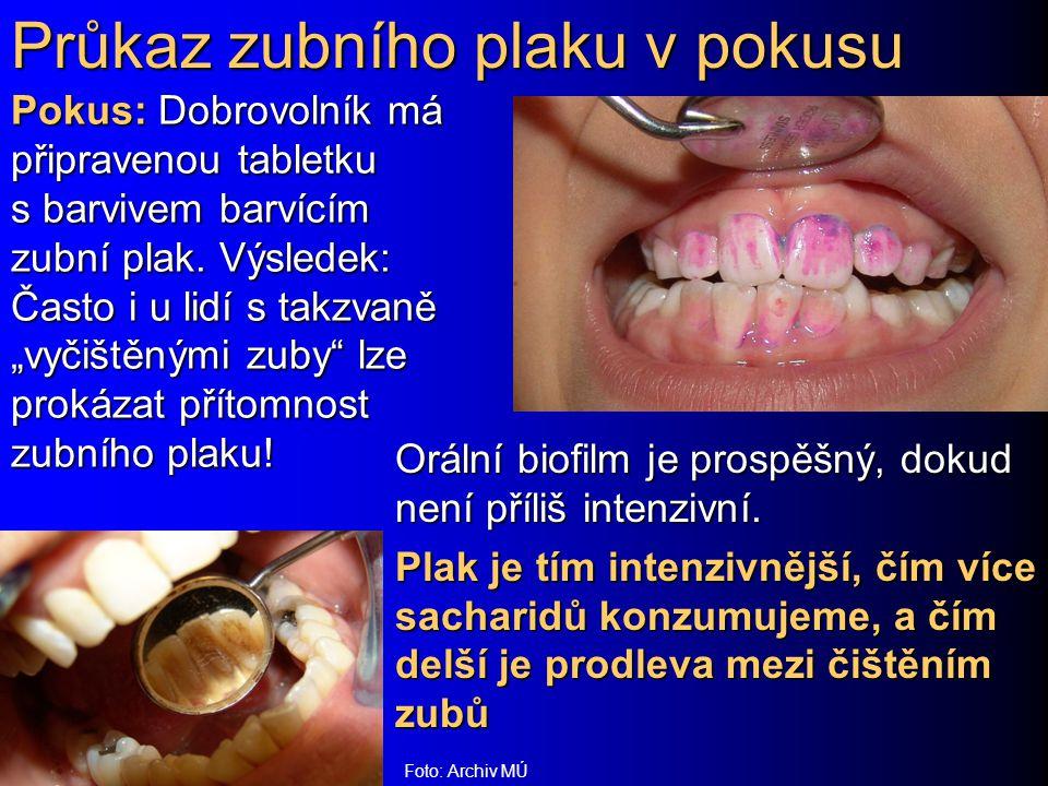 """Průkaz zubního plaku v pokusu Pokus: Dobrovolník má připravenou tabletku s barvivem barvícím zubní plak. Výsledek: Často i u lidí s takzvaně """"vyčištěn"""