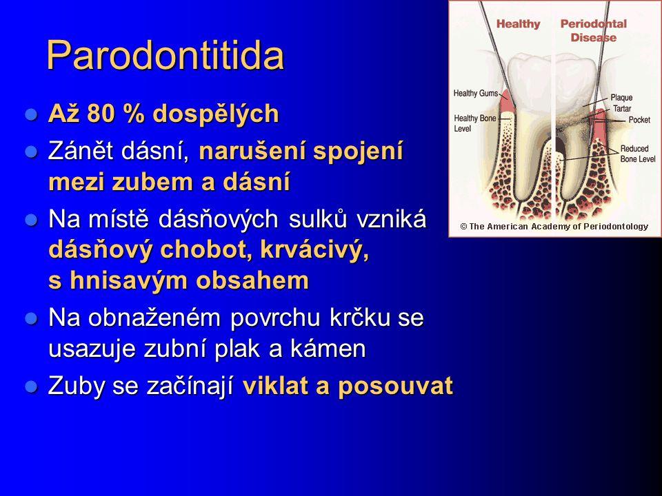 Parodontitida Až 80 % dospělých Až 80 % dospělých Zánět dásní, narušení spojení mezi zubem a dásní Zánět dásní, narušení spojení mezi zubem a dásní Na