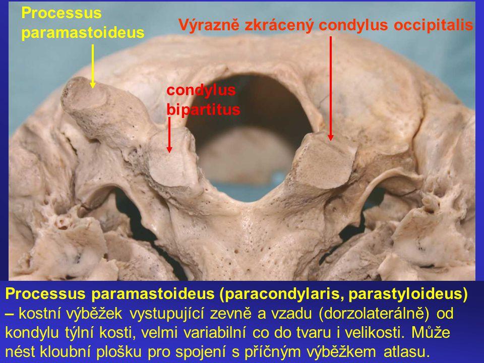Processus paramastoideus (paracondylaris, parastyloideus) – kostní výběžek vystupující zevně a vzadu (dorzolaterálně) od kondylu týlní kosti, velmi variabilní co do tvaru i velikosti.