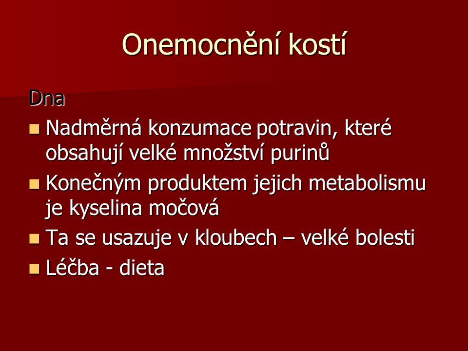 Onemocnění kostí Dna Nadměrná konzumace potravin, které obsahují velké množství purinů Nadměrná konzumace potravin, které obsahují velké množství purinů Konečným produktem jejich metabolismu je kyselina močová Konečným produktem jejich metabolismu je kyselina močová Ta se usazuje v kloubech – velké bolesti Ta se usazuje v kloubech – velké bolesti Léčba - dieta Léčba - dieta