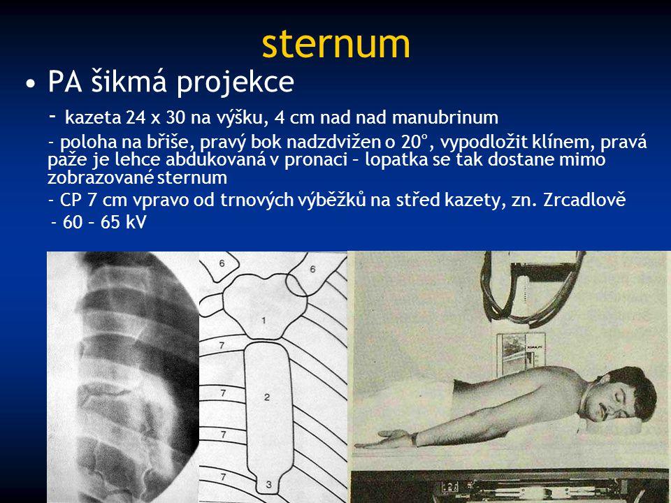 sternum PA šikmá projekce - kazeta 24 x 30 na výšku, 4 cm nad nad manubrinum - poloha na břiše, pravý bok nadzdvižen o 20°, vypodložit klínem, pravá p
