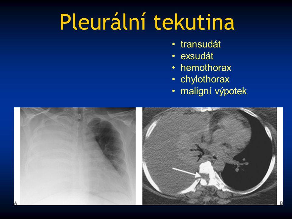 Pleurální tekutina transudát exsudát hemothorax chylothorax maligní výpotek