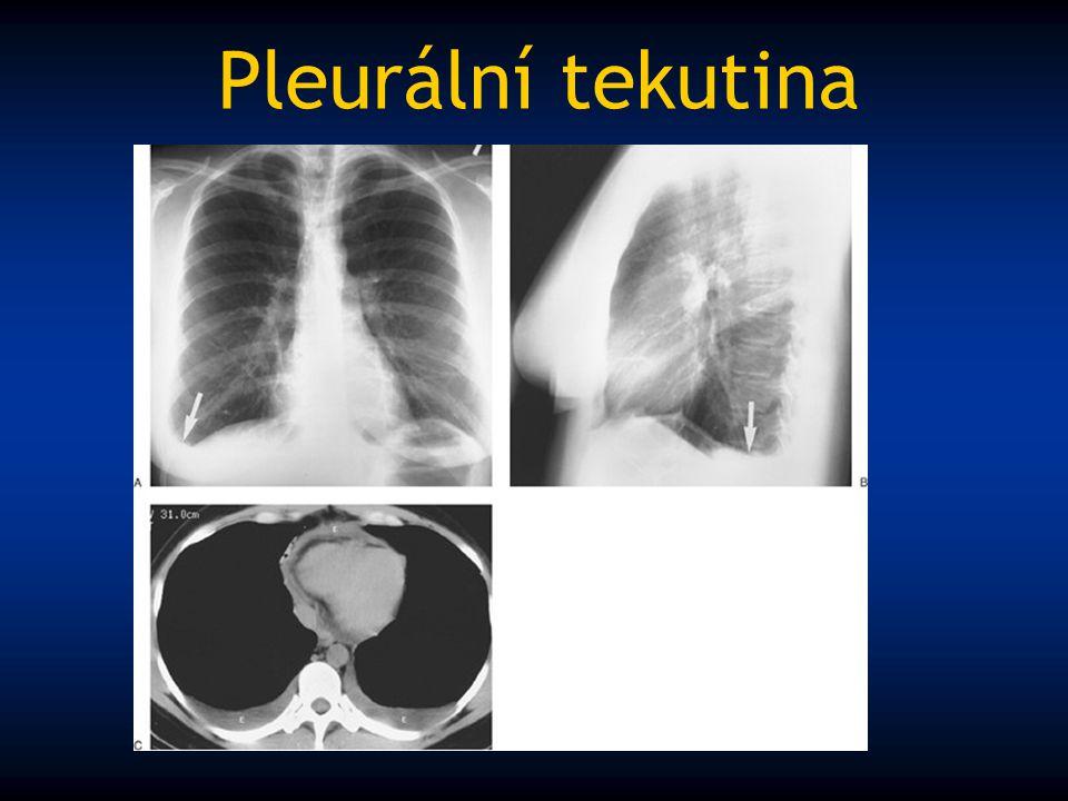 Pleurální tekutina