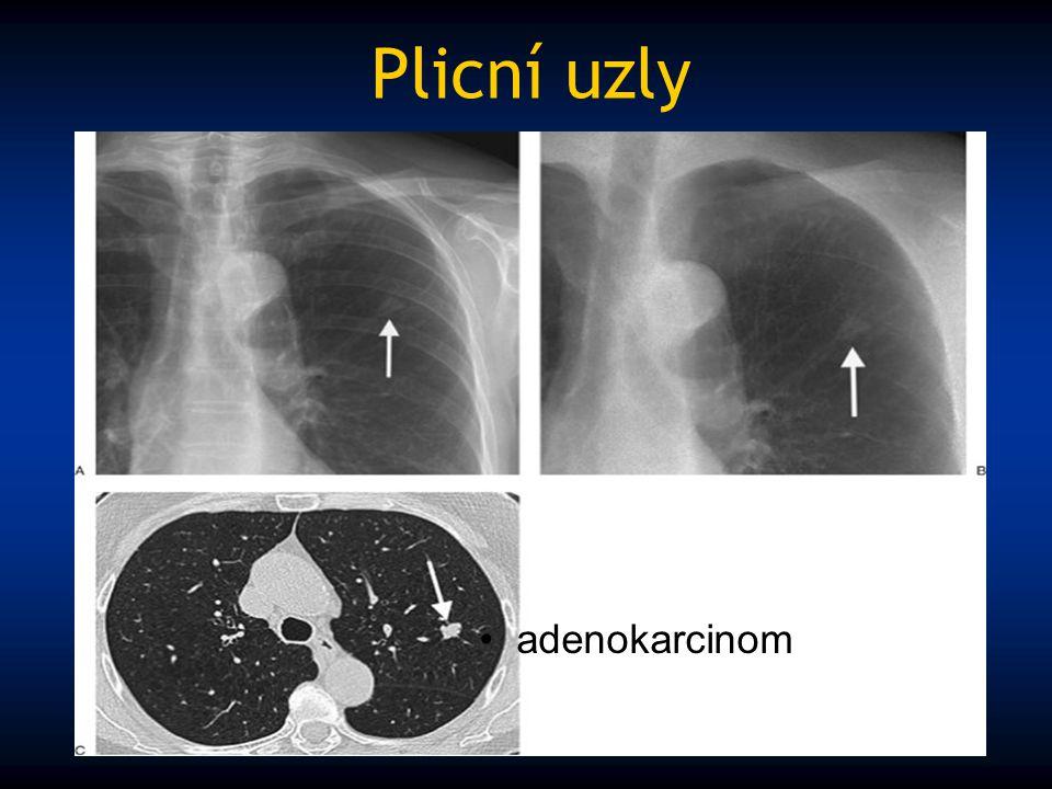 Plicní uzly adenokarcinom