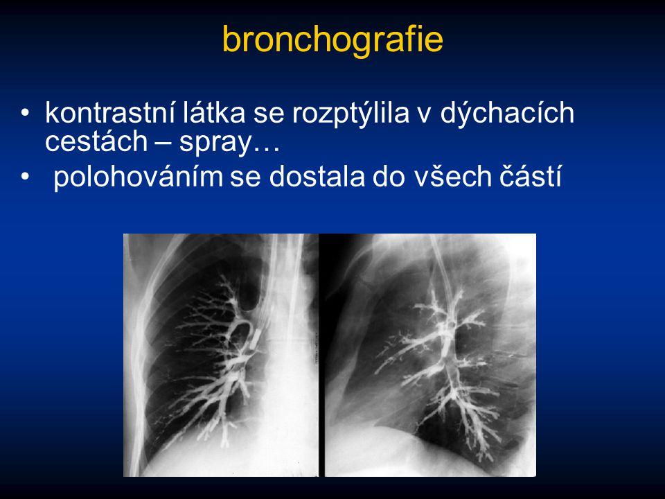 bronchografie kontrastní látka se rozptýlila v dýchacích cestách – spray… polohováním se dostala do všech částí