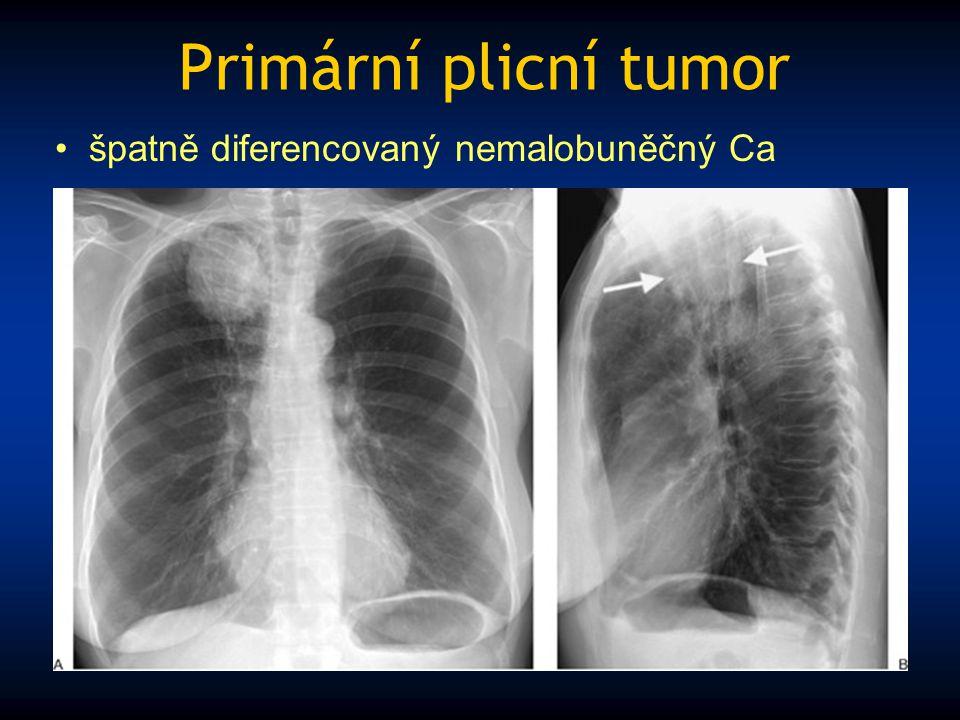 Primární plicní tumor špatně diferencovaný nemalobuněčný Ca