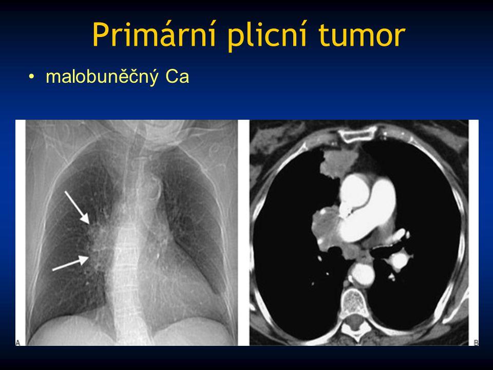 Primární plicní tumor malobuněčný Ca
