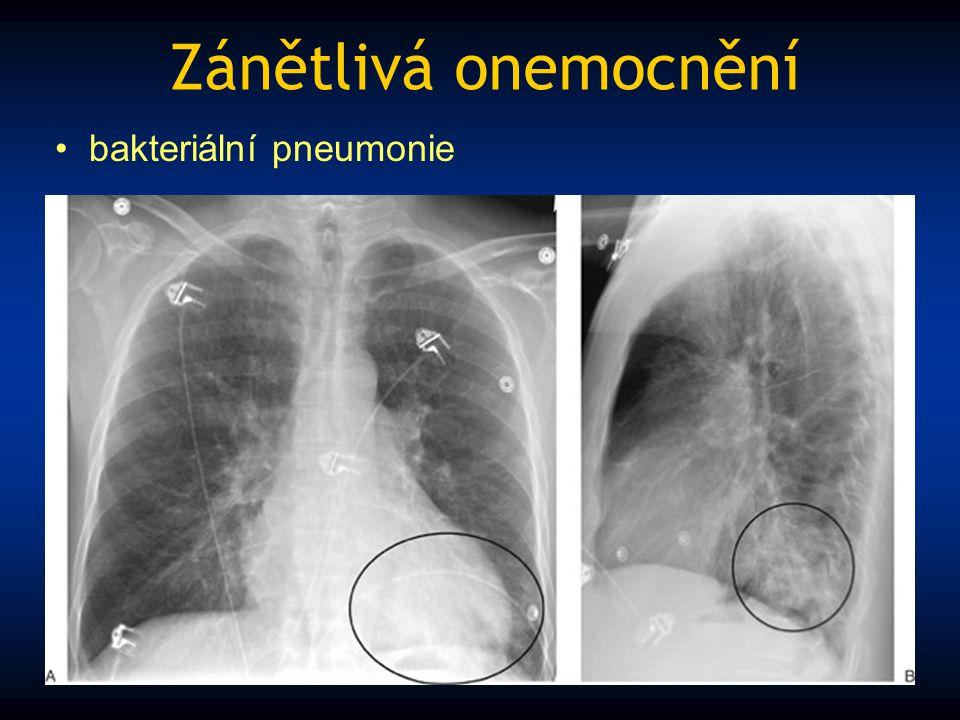 Zánětlivá onemocnění bakteriální pneumonie