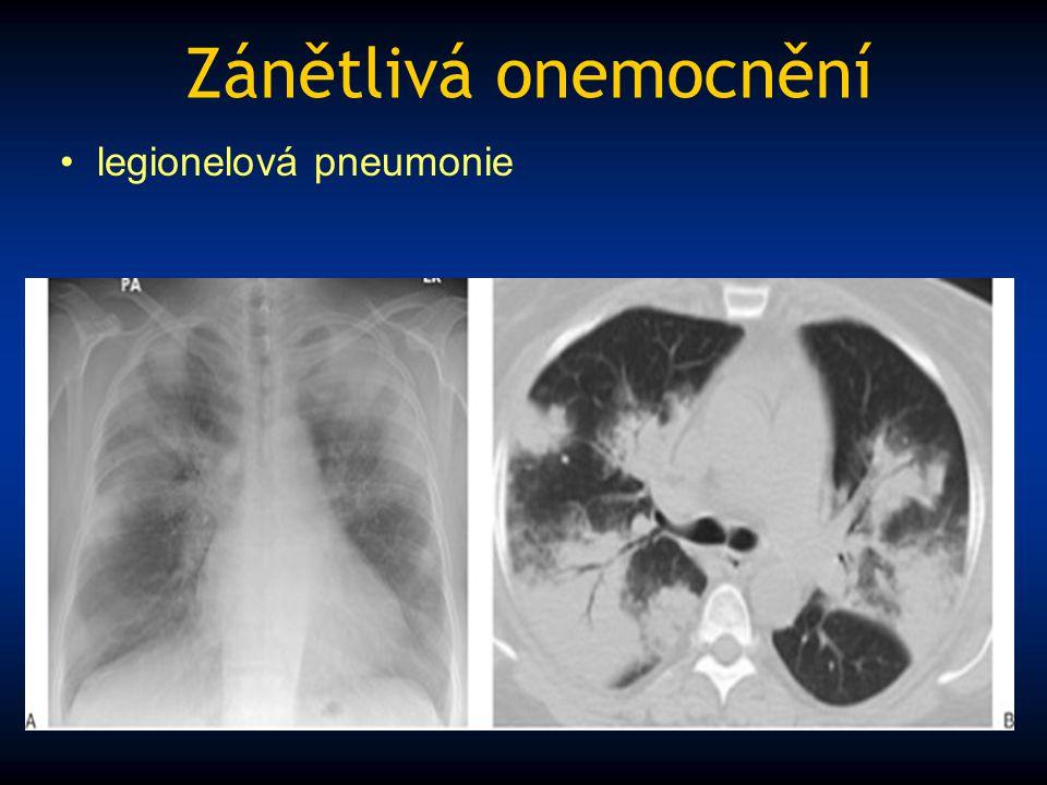 Zánětlivá onemocnění legionelová pneumonie