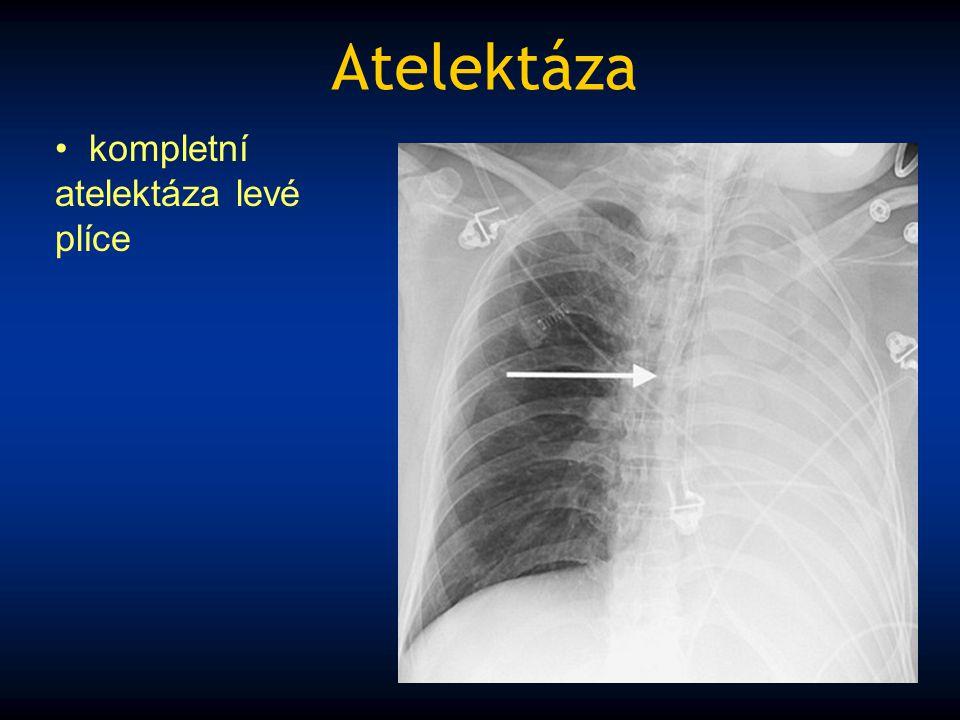 Atelektáza kompletní atelektáza levé plíce