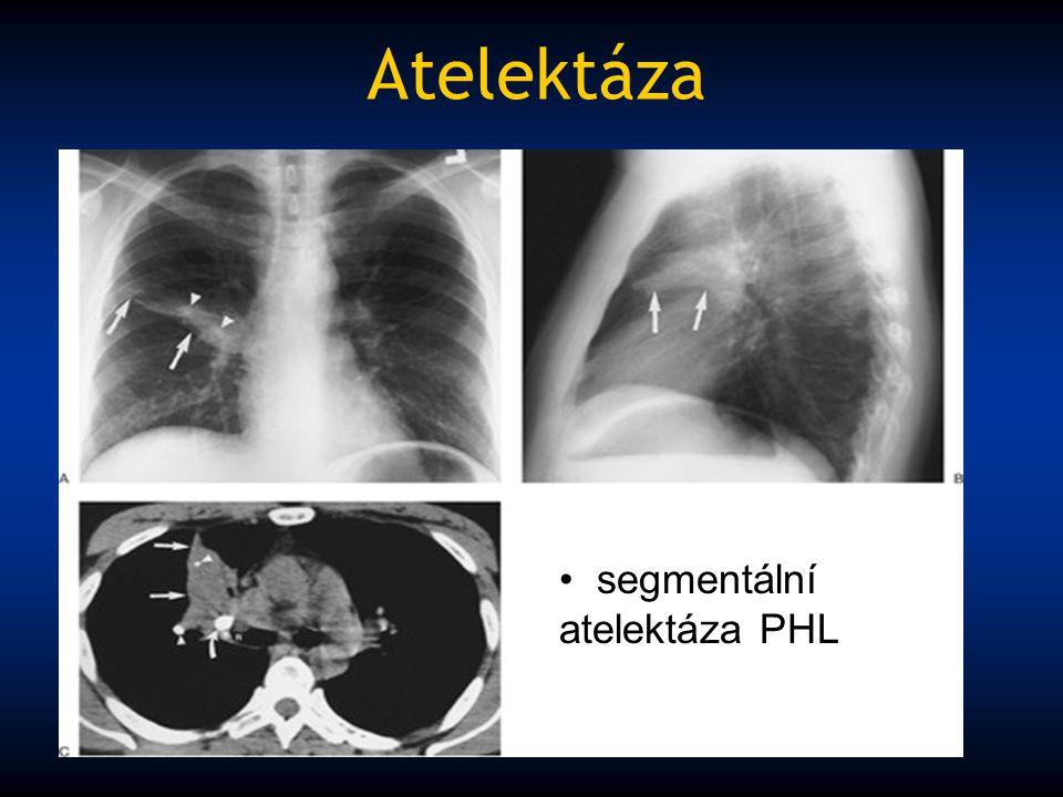 Atelektáza segmentální atelektáza PHL