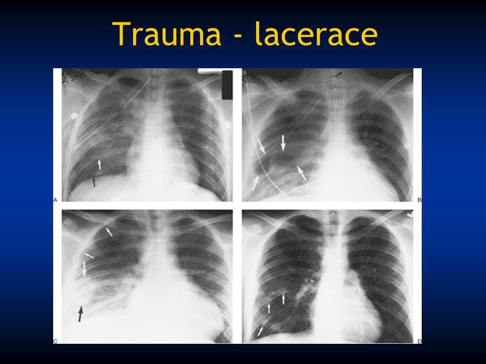 Trauma - lacerace