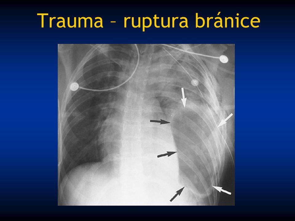 Trauma – ruptura bránice