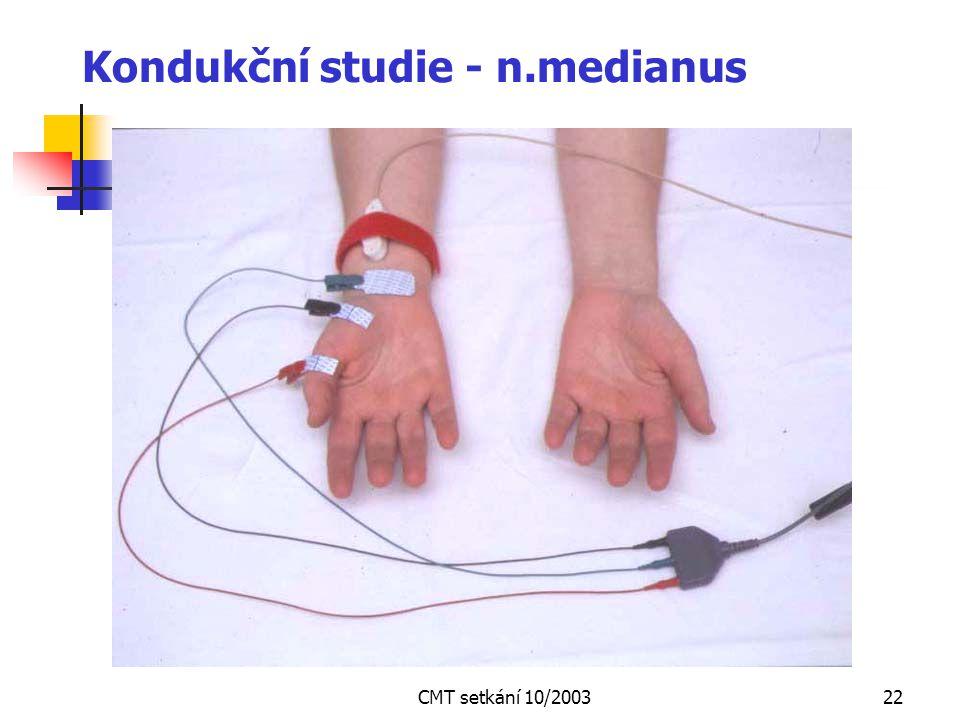 CMT setkání 10/200321 Kondukční studie - n.tibialis
