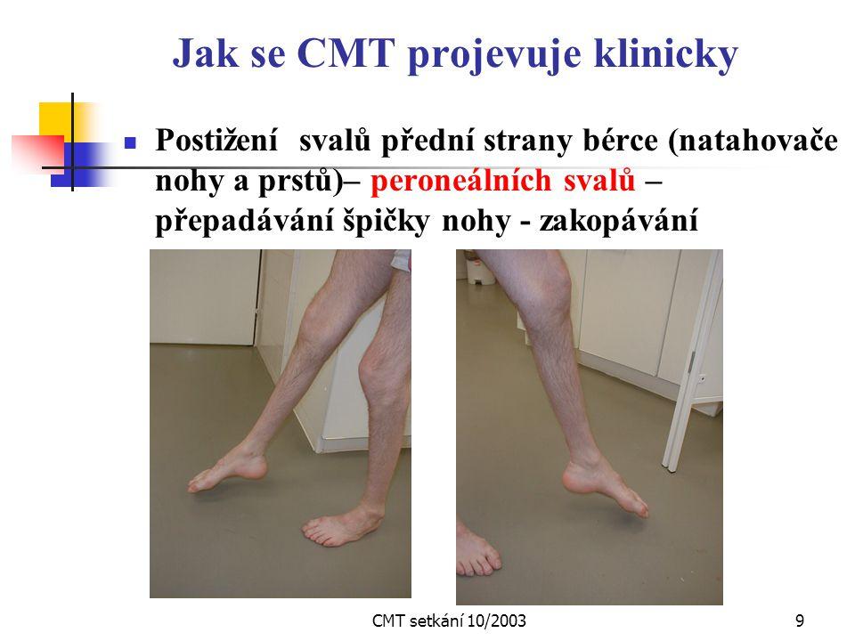 CMT setkání 10/20039 Jak se CMT projevuje klinicky Postižení svalů přední strany bérce (natahovače nohy a prstů)– peroneálních svalů – přepadávání špičky nohy - zakopávání