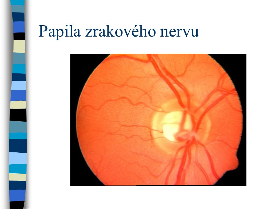Papila zrakového nervu