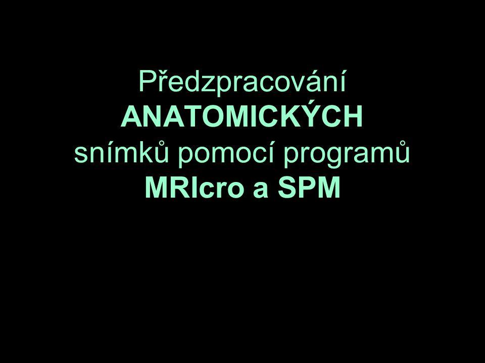Předzpracování ANATOMICKÝCH snímků pomocí programů MRIcro a SPM