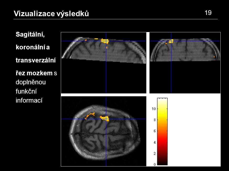 Vizualizace výsledků 19 Sagitální, koronální a transverzální řez mozkem s doplněnou funkční informací