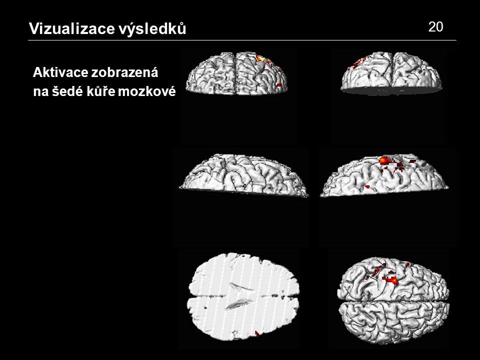 Vizualizace výsledků 20 Aktivace zobrazená na šedé kůře mozkové