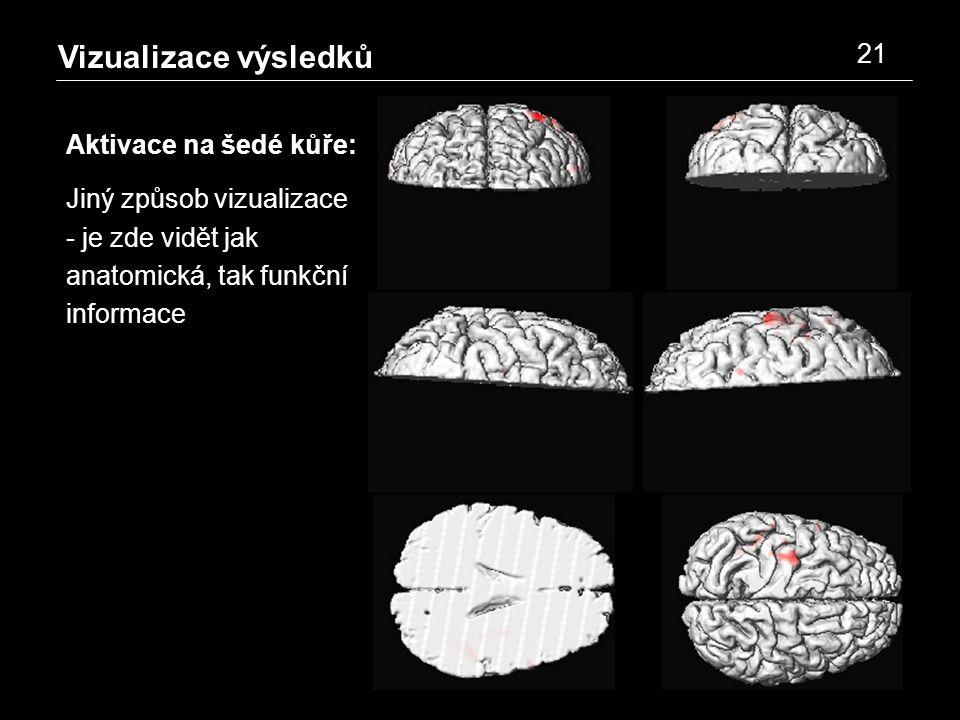 Vizualizace výsledků 21 Aktivace na šedé kůře: Jiný způsob vizualizace - je zde vidět jak anatomická, tak funkční informace