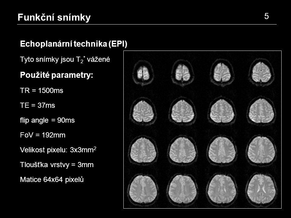 Funkční snímky 5 Echoplanární technika (EPI) Tyto snímky jsou T 2 * vážené Použité parametry: TR = 1500ms TE = 37ms flip angle = 90ms FoV = 192mm Velikost pixelu: 3x3mm 2 Tloušťka vrstvy = 3mm Matice 64x64 pixelů