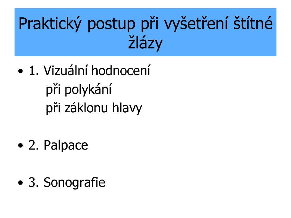 Praktický postup při vyšetření štítné žlázy 1. Vizuální hodnocení při polykání při záklonu hlavy 2. Palpace 3. Sonografie