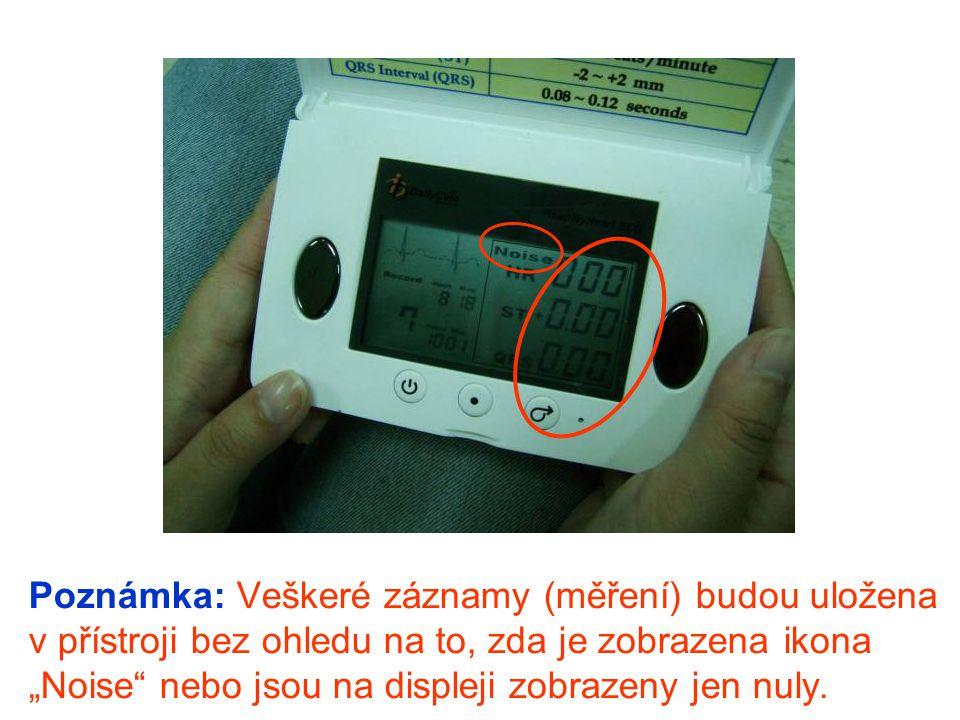 """Poznámka: Veškeré záznamy (měření) budou uložena v přístroji bez ohledu na to, zda je zobrazena ikona """"Noise"""" nebo jsou na displeji zobrazeny jen nuly"""