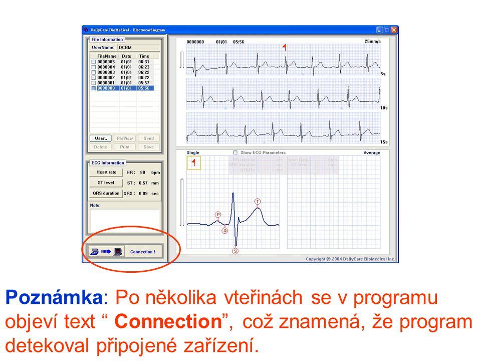 """Poznámka: Po několika vteřinách se v programu objeví text """" Connection"""", což znamená, že program detekoval připojené zařízení."""
