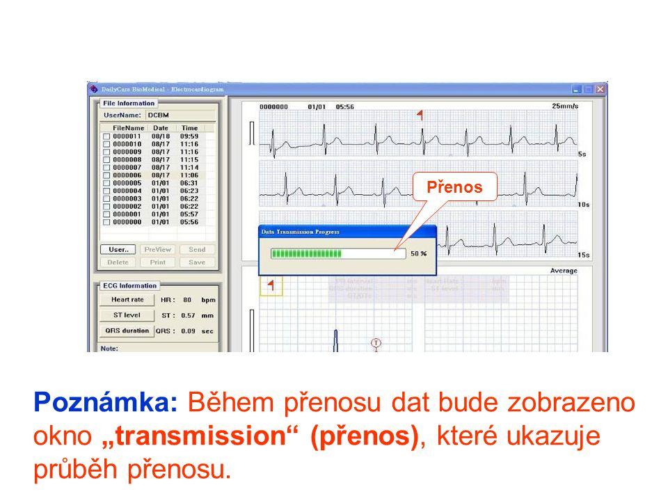 """Poznámka: Během přenosu dat bude zobrazeno okno """"transmission"""" (přenos), které ukazuje průběh přenosu. Přenos"""