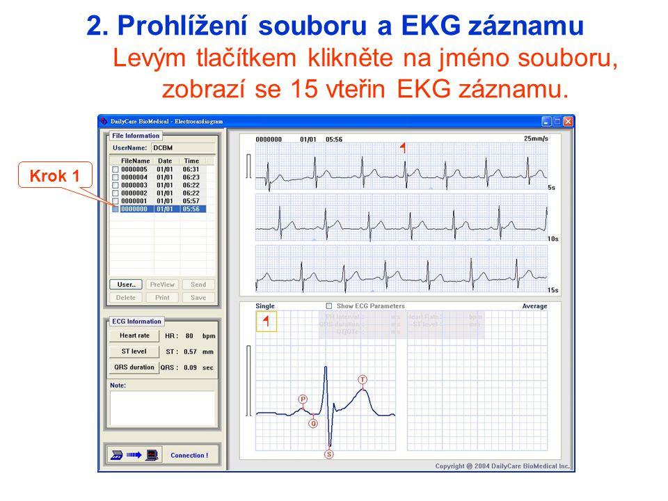 Krok 1 2. Prohlížení souboru a EKG záznamu Levým tlačítkem klikněte na jméno souboru, zobrazí se 15 vteřin EKG záznamu.