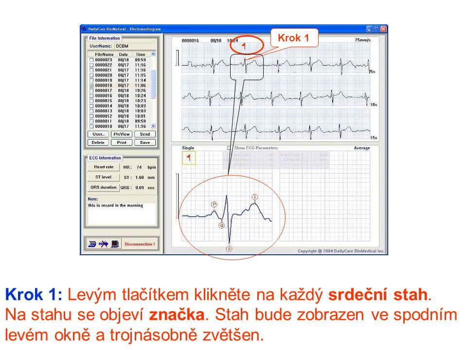 Krok 1: Levým tlačítkem klikněte na každý srdeční stah. Na stahu se objeví značka. Stah bude zobrazen ve spodním levém okně a trojnásobně zvětšen. Kro