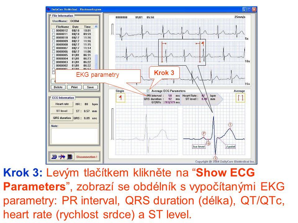 """Krok 3: Levým tlačítkem klikněte na """"Show ECG Parameters"""", zobrazí se obdélník s vypočítanými EKG parametry: PR interval, QRS duration (délka), QT/QTc"""