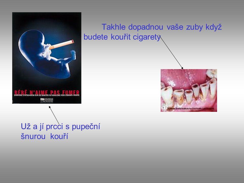 Takhle dopadnou vaše zuby když budete kouřit cigarety Už a jí prcci s pupeční šnurou kouří