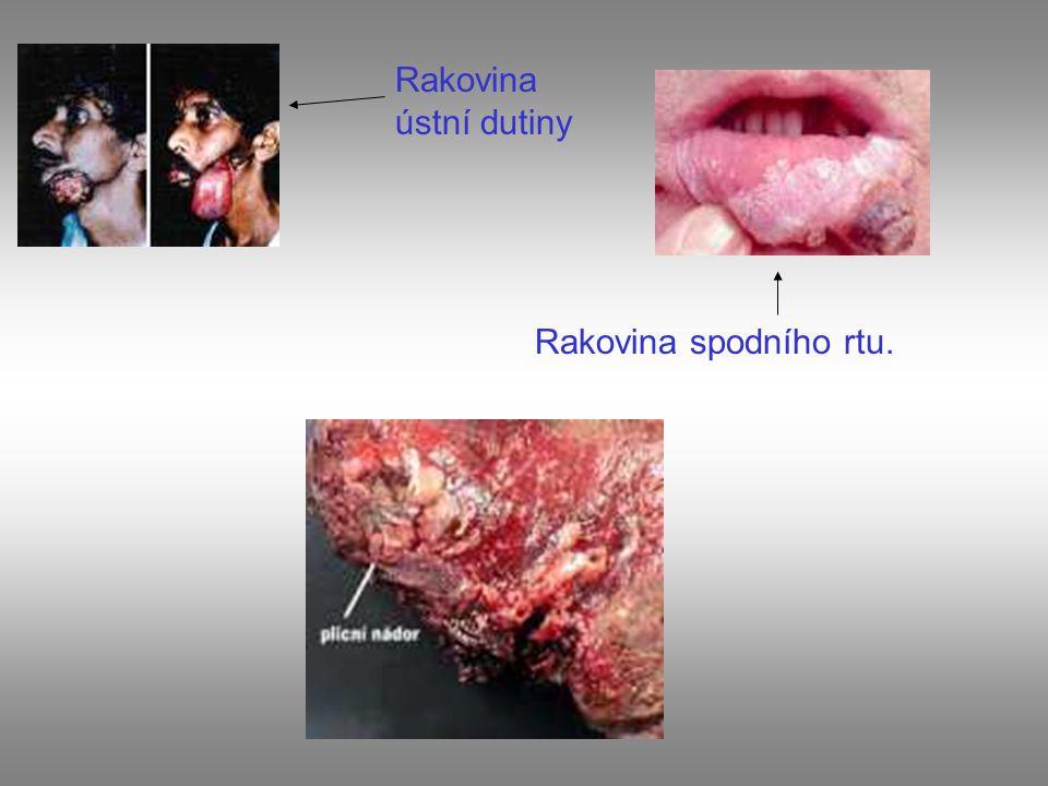 Rakovina spodního rtu. Rakovina ústní dutiny