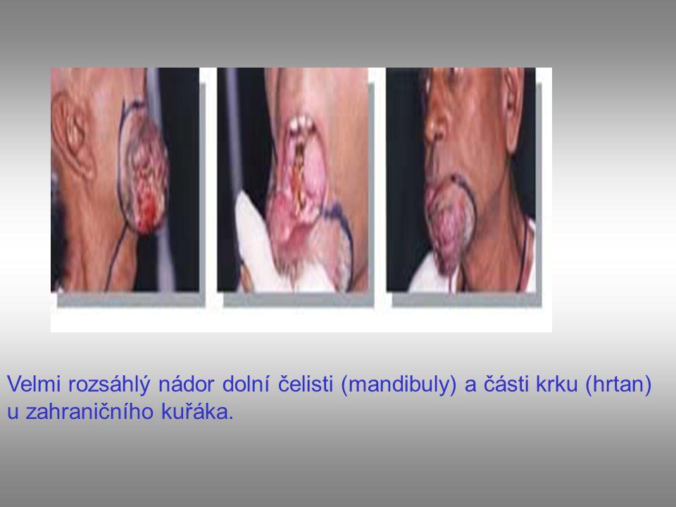 Velmi rozsáhlý nádor dolní čelisti (mandibuly) a části krku (hrtan) u zahraničního kuřáka.