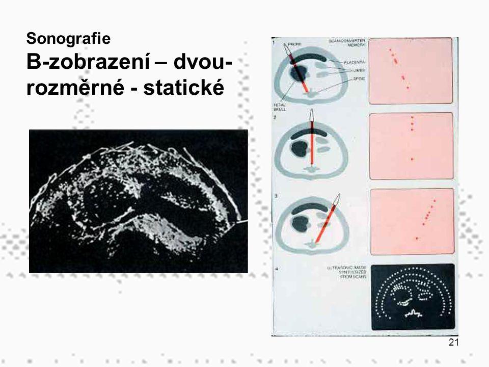 21 Sonografie B-zobrazení – dvou- rozměrné - statické