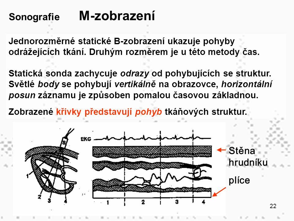 22 Sonografie M-zobrazení Jednorozměrné statické B-zobrazení ukazuje pohyby odrážejících tkání. Druhým rozměrem je u této metody čas. Statická sonda z