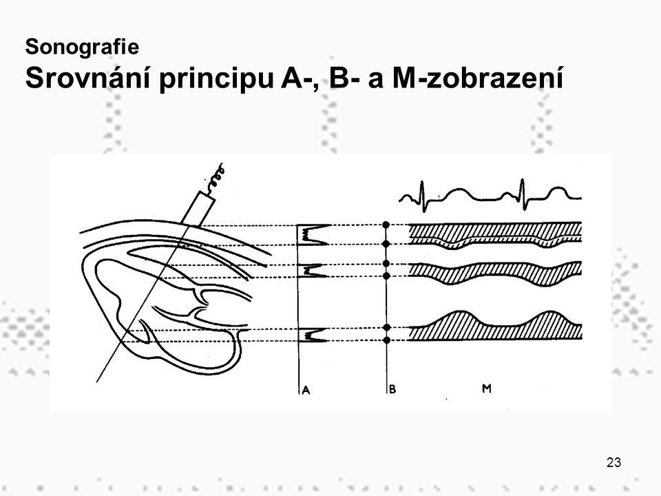 23 Sonografie Srovnání principu A-, B- a M-zobrazení