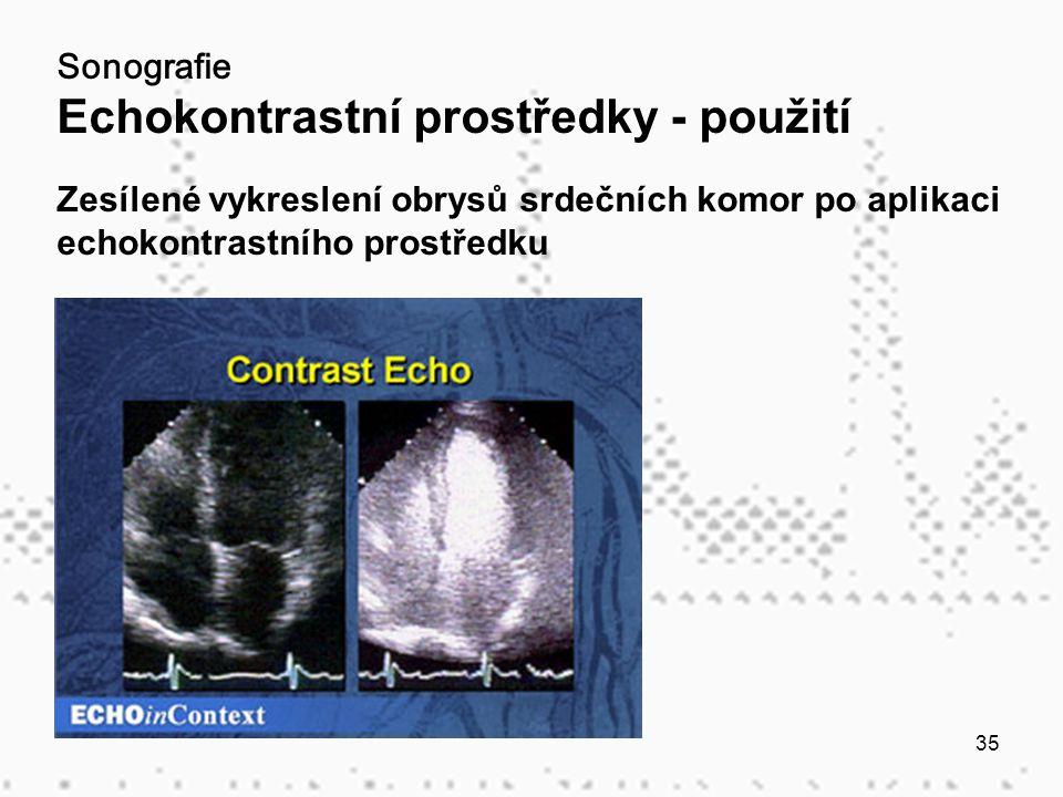 35 Sonografie Echokontrastní prostředky - použití Zesílené vykreslení obrysů srdečních komor po aplikaci echokontrastního prostředku
