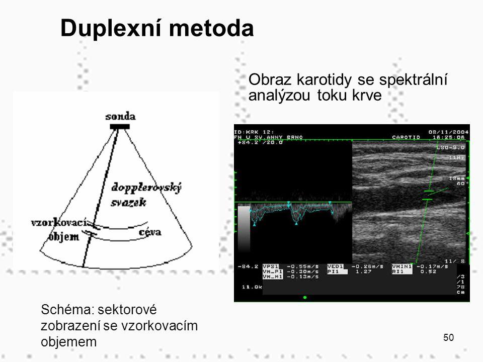 50 Obraz karotidy se spektrální analýzou toku krve Schéma: sektorové zobrazení se vzorkovacím objemem Duplexní metoda